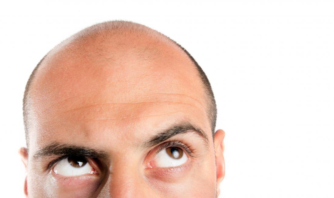 治療雄性禿可能壞了你的性生活!