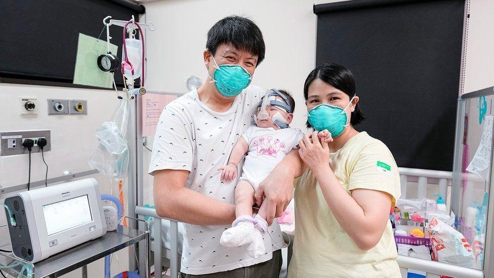 世界上最小的新生兒 出院了!