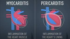 mRNA疫苗引起心肌發炎?