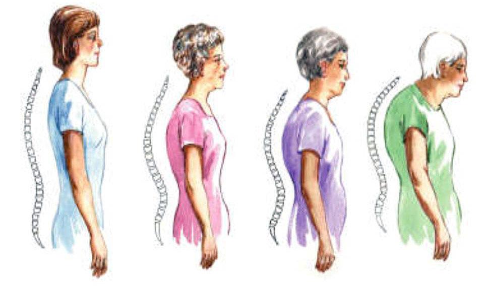 歐洲更新了女性骨質疏鬆症診斷與治療指引