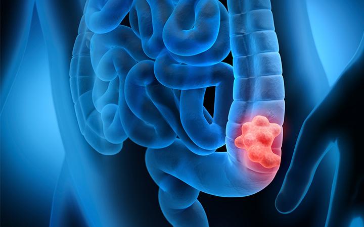 新指南:大腸直腸癌篩檢的年齡應提前至45歲